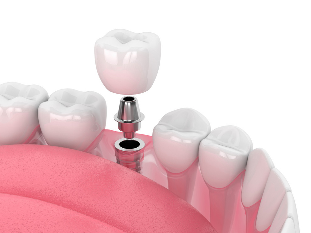 3d,Render,Of,Jaw,With,Dental,Implant,Isolated,Over,White