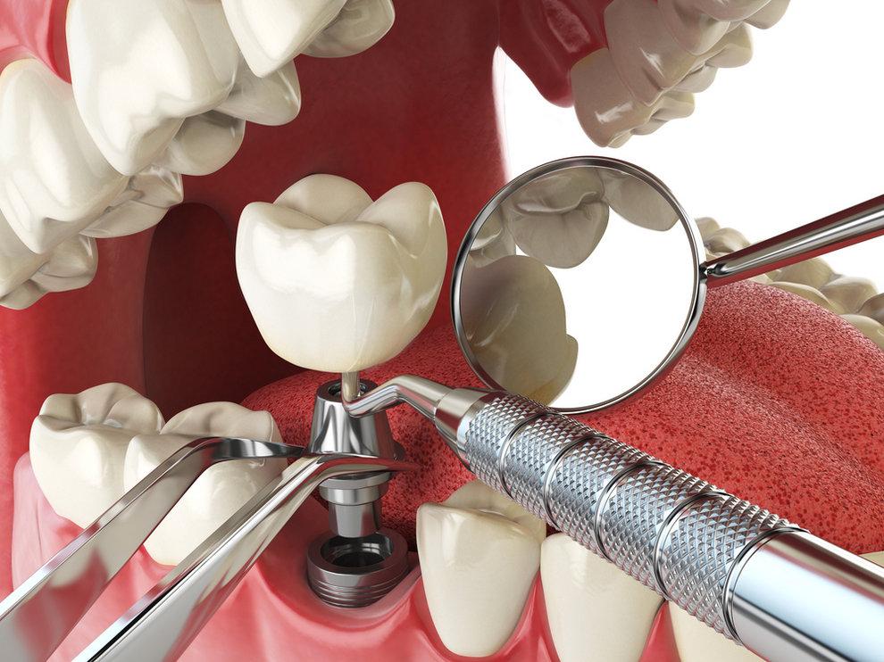 Tooth,Human,Implant.,Dental,Implantation,Concept.,Human,Teeth,Or,Dentures