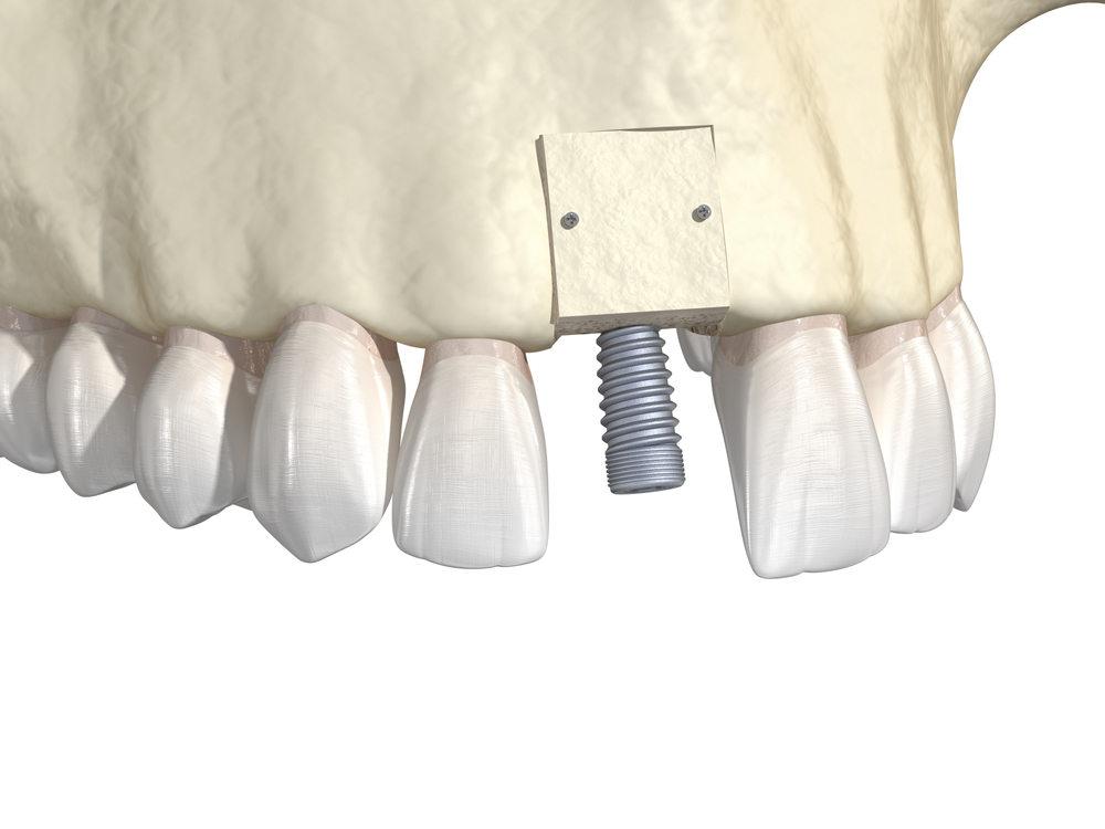 Bone,Grafting-,Augmentation,Using,Block,Of,Bone,,Tooth,Implantation.,Medically
