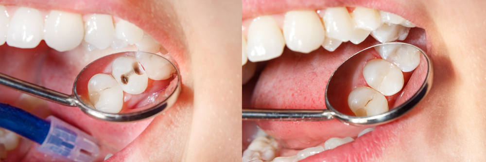 Dental,Caries.,Filling,With,Dental,Composite,Photopolymer,Material,Using,Rabbders.