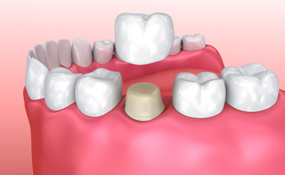 Dental,Crown,Installation,Process,,Medically,Accurate,3d,Illustration