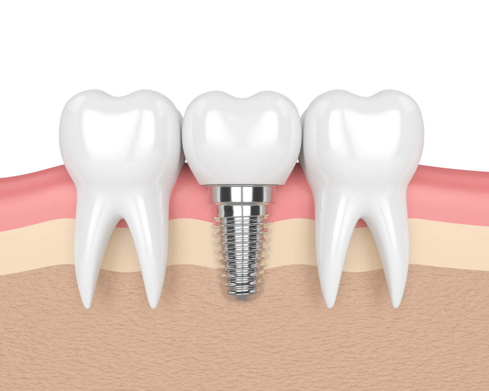 3d,Render,Of,Teeth,With,Dental,Implant,In,Gums,Over