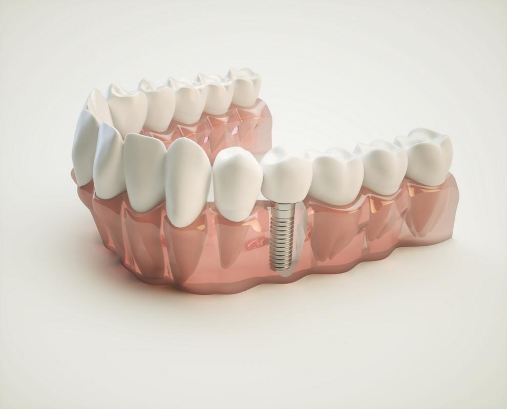 Dental,Implant,-,3d,Rendering