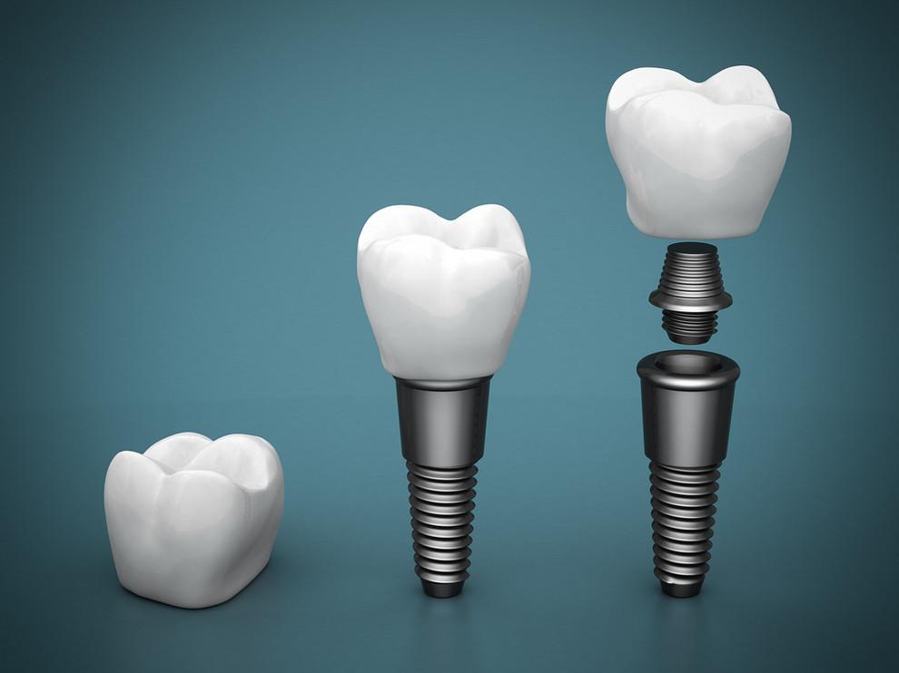 Dental,Implants,On,A,Beautiful,Blue,Background