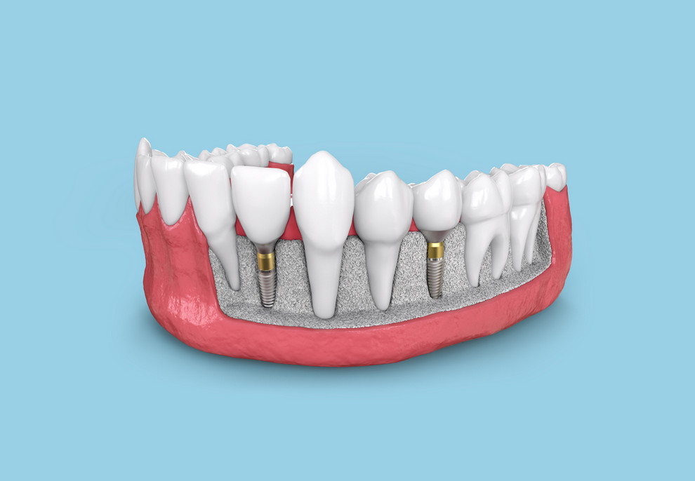 Tooth,Implant,Model,In,Jaw,3d,Illustration