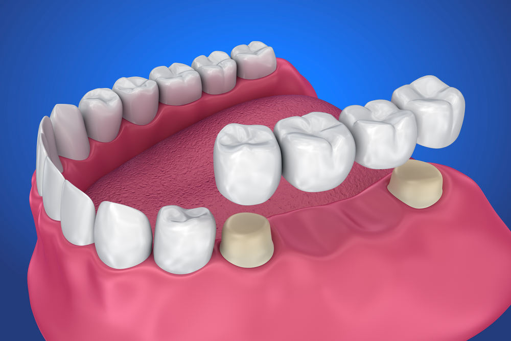 Tooth,Supported,Fixed,Bridge.,Medically,Accurate,3d,Illustration