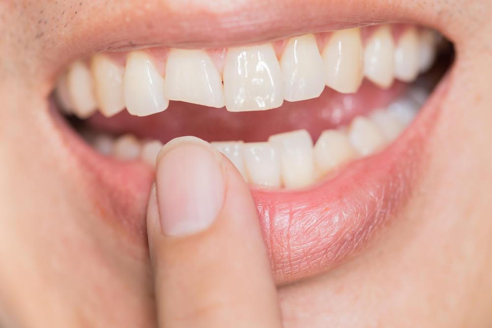 Ugly,Smile,Dental,Problem.,Teeth,Injuries,Or,Teeth,Breaking,In