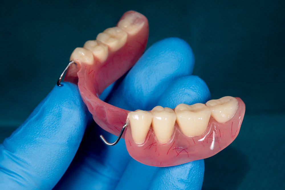 Denture.,Partial,Removable,Denture,Of,The,Lower,Jaw,Of,A
