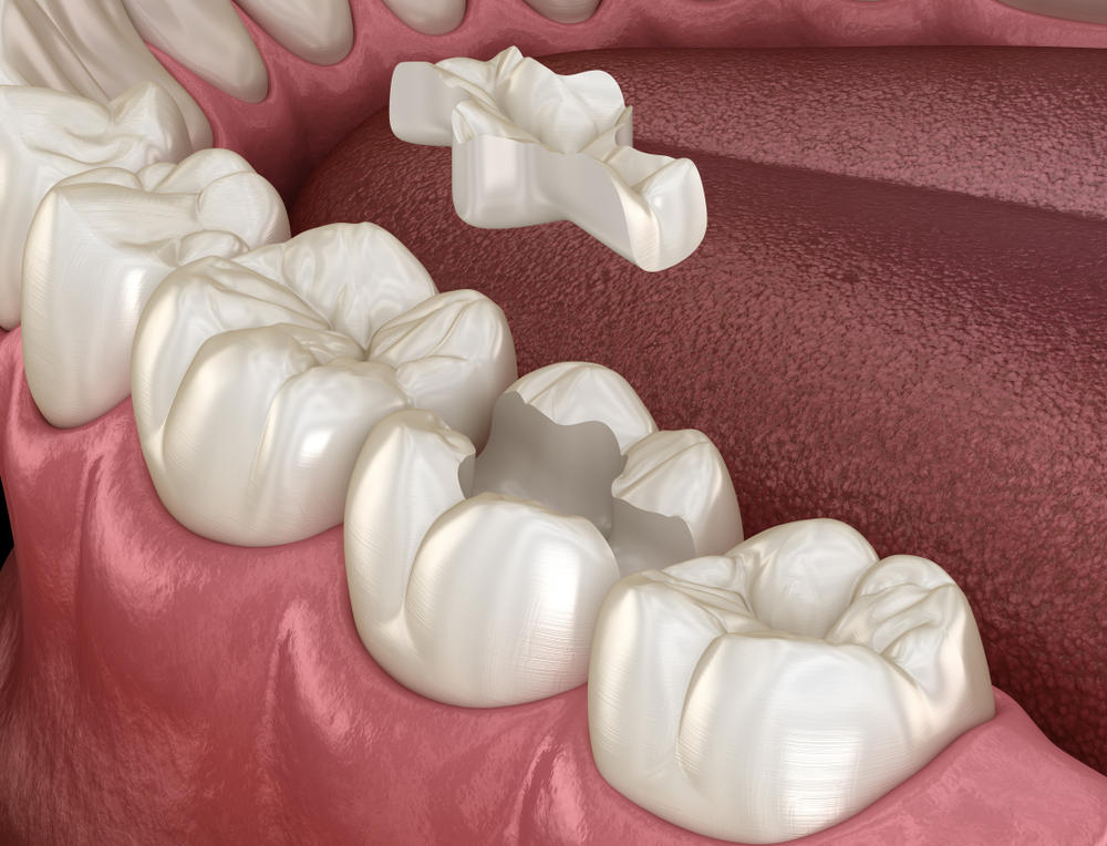 Inlay,Ceramic,Crown,Fixation,Over,Tooth.,Medically,Accurate,3d,Illustration