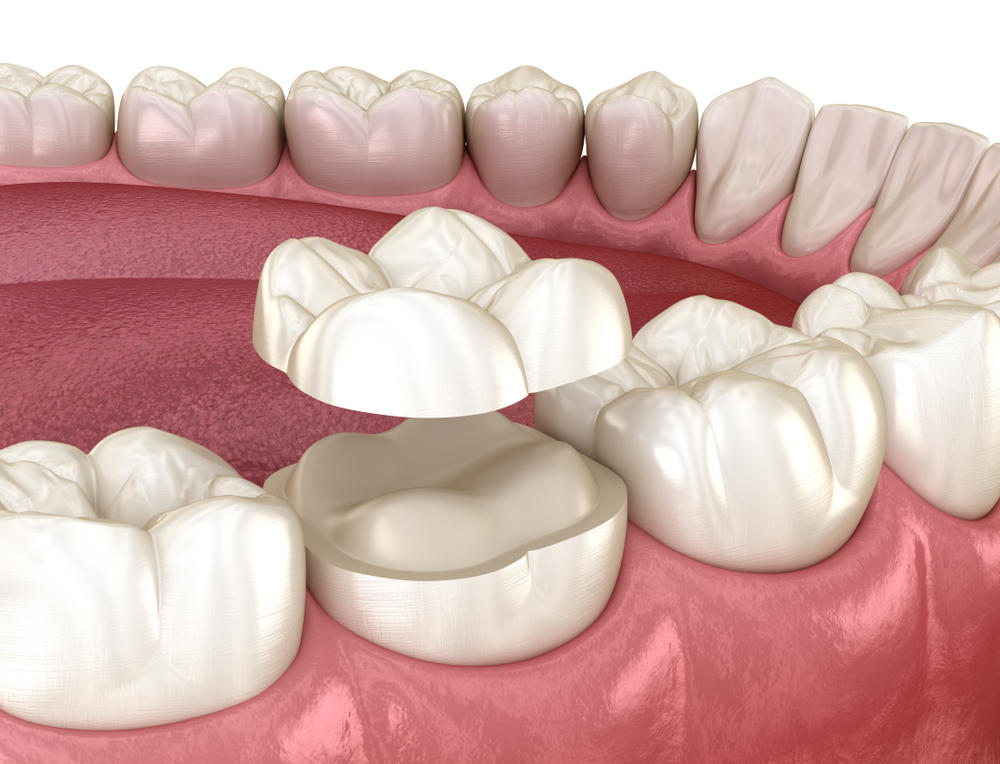 Onlay,Ceramic,Crown,Fixation,Over,Molar,Tooth.,Medically,Accurate,3d