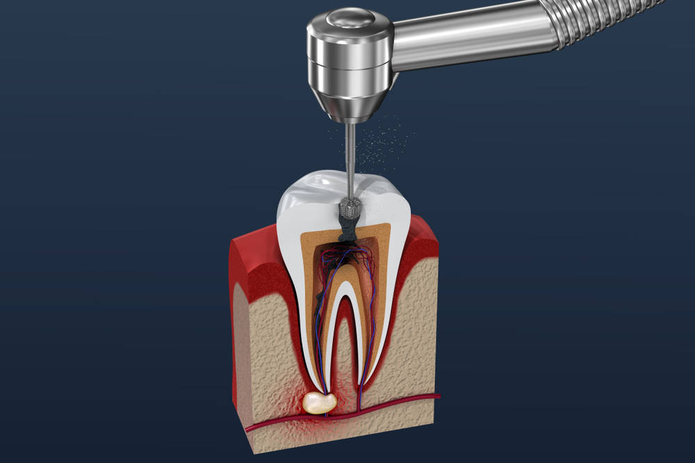 Root,Canal,Treatment,Process.,3d,Illustration