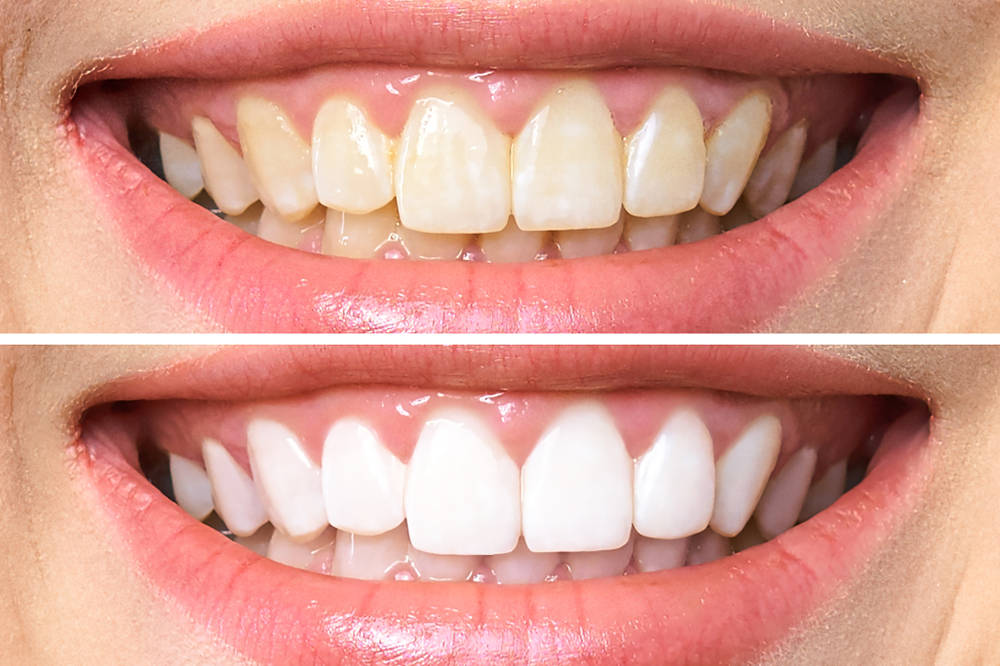 Woman,Teeth,Before,And,After,Whitening.,Over,White,Background.,Dental