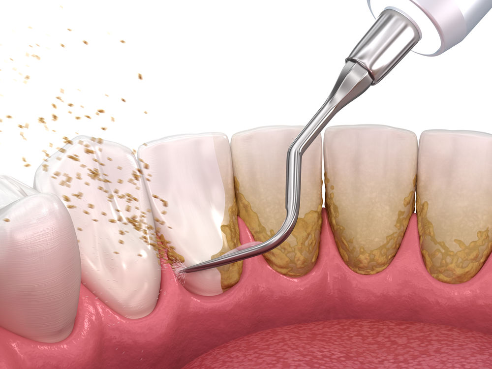 Oral,Hygiene:,Scaling,And,Root,Planing,(conventional,Periodontal,Therapy).,Medically