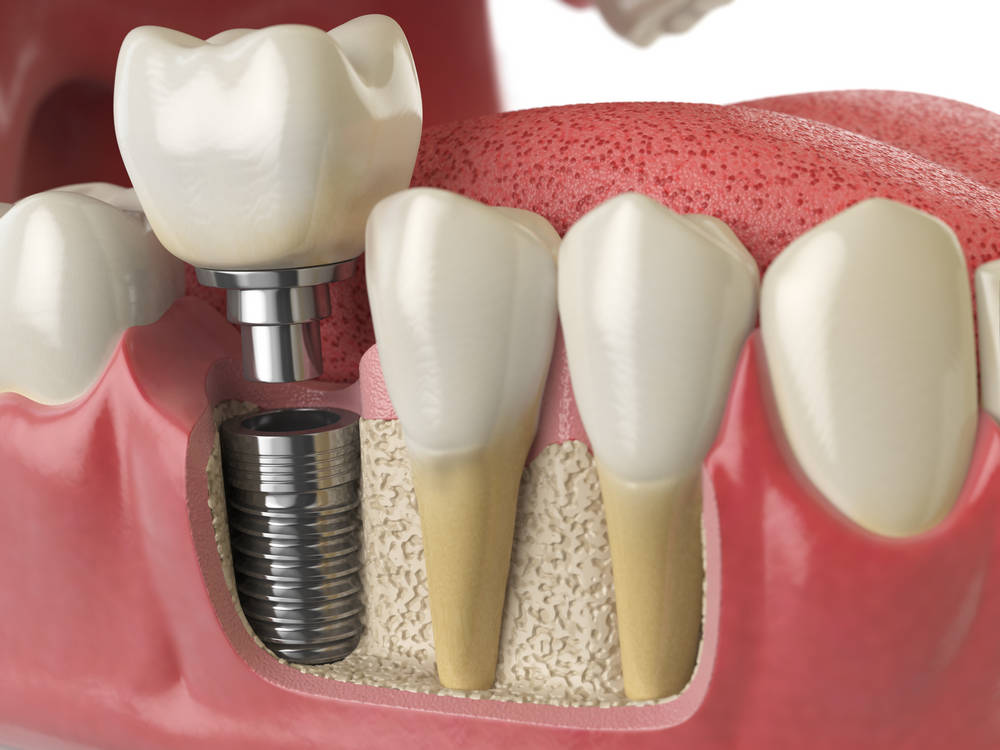 Anatomy,Of,Healthy,Teeth,And,Tooth,Dental,Implant,In,Human